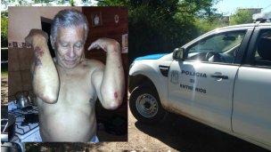 Golpiza a dos vecinos: ¿Apremios ilegales o legítima acción policial?