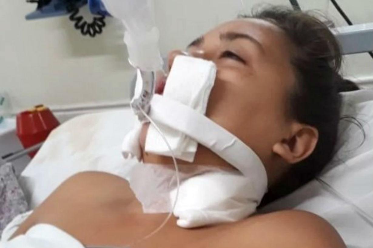 Yanina, después de la operación