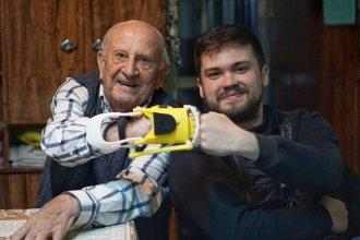 Cuatro entrerrianos recibieron manos impresas en 3D