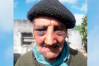 Dos robos en pocos días: le desfiguraron la cara para sacarle una garrafa