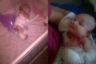 """Pedido solidario: Su beba tiene """"piel de cristal"""" y no pueden pagar el tratamiento"""