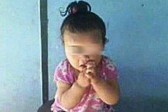 Se agravó el estado de salud de la pequeña de 15 meses que se quemó con aceite hirviendo