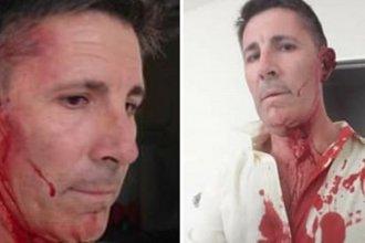 Un empleado golpeó salvajemente al director de una unidad municipal y lo dejó sordo
