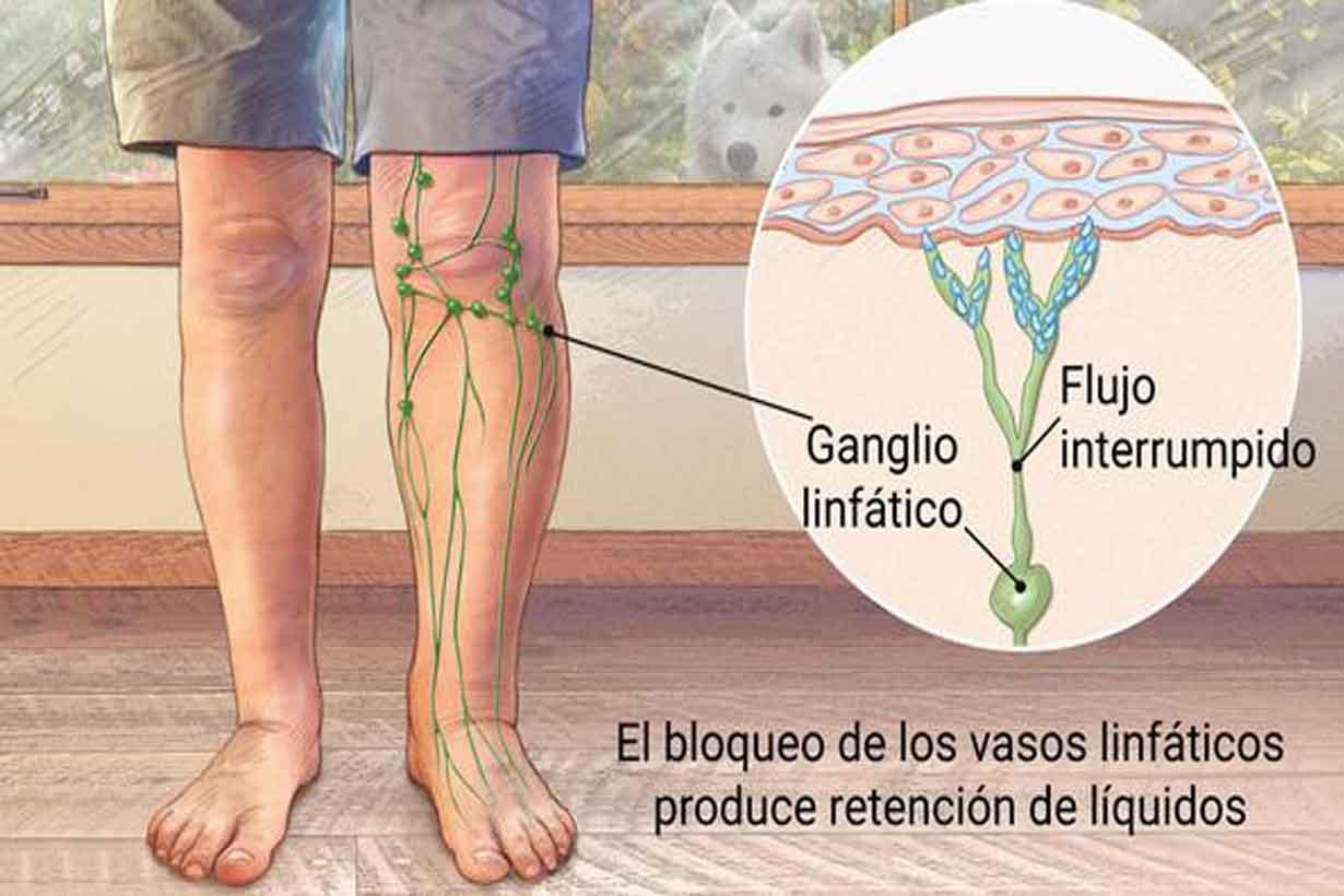 Imagen publicada por Clínica Mayo