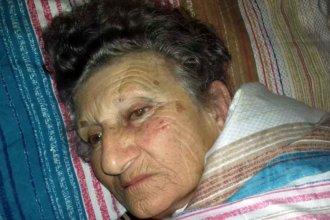 """Tiene 79 años y fue víctima de un violento asalto: """"Le pedía a Dios que dejasen de pegarme"""""""