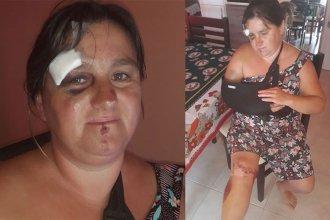 Un brazo quebrado y golpes en todo el cuerpo sufrió una mujer a la que tumbaron de su moto para robarle una cartera