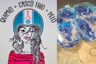 """Buscan crear banco de """"cascos"""" para evitar la caída del cabello por quimioterapia"""