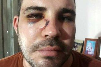La Justicia dice que investiga el caso donde policías y detenido se acusan de haberse agredido