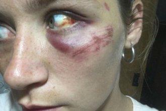 """Denunció que su novio la golpea hace dos años: """"Tenía ganas de morirme"""""""
