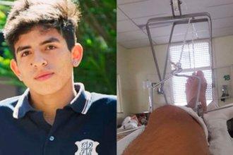 """Lo golpearon """"cuando quiso entrar a un cumpleaños"""": Está internado y espera una prótesis para la pierna"""