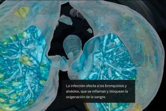 Así ataca el coronavirus en casos letales: Video en 3D muestra por primera vez la infección en los pulmones