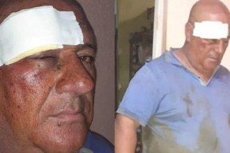 Un trabajador municipal fue atacado a golpes en el basural de Concordia